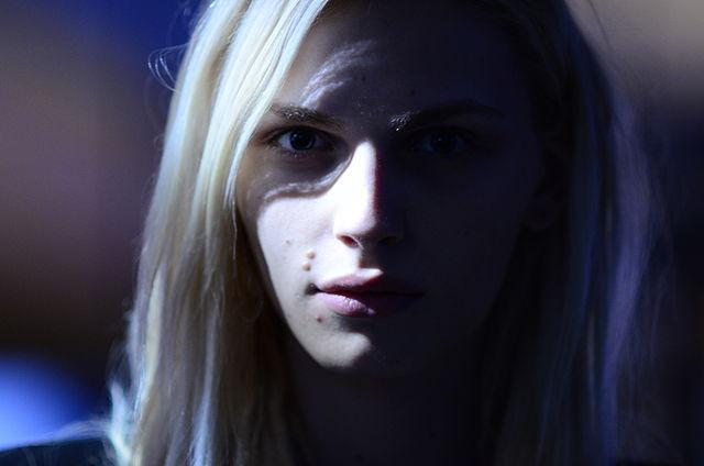 Acne, vitiligine e psoriasi: l'impatto sociale della malattia dermatologica